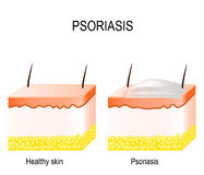 Psoriasis Royalty Free Stock Images