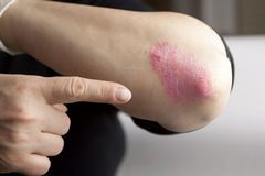 Free Psoriasis On Elbow Royalty Free Stock Images - 41100549