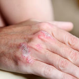 Psoriasis op de handbeenderen - close-up Stock Foto's