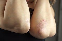 Psoriasis op ellebogen stock afbeelding