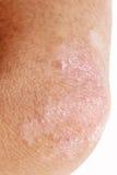 Psoriasis op elleboog Stock Afbeelding