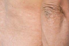 Psoriasis på huden royaltyfri fotografi