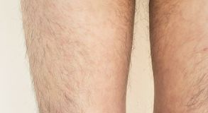 Psoriasis på huden arkivbilder