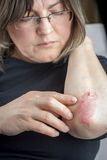 Psoriasis på armbåge Royaltyfri Fotografi