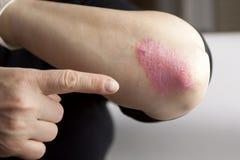 Psoriasis på armbåge Royaltyfria Bilder