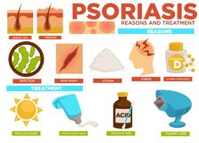 Psoriasis reasons and treatment poster with info vector. Illness caused by skin injury infection, lithium or stress, vitamin D deficiency in body. Cure with royalty free illustration
