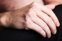 Psoriasis severo - psoriasis en la mano foto de archivo