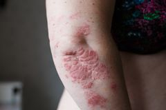 Psoriasis skin. Psoriasis is an autoimmune disease that affects the skin cause skin inflammation red and scaly. Eczema. Psoriasis skin. Psoriasis is an Stock Photo