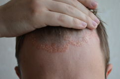 Psoriasis on the skin close-up, scalp, photos of dermatitis and eczema, skin problems, dermatology. Psoriasis on the skin close-up, scalp, photos of dermatitis Royalty Free Stock Image