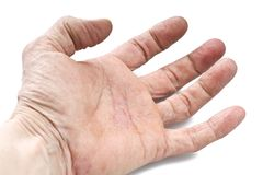 Psoriasis, skin disease. On the joints of the body Royalty Free Stock Photography