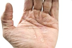 Psoriasis, skin disease. On the joints of the body Stock Images