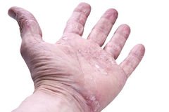 Psoriasis, skin disease. On the joints of the body Royalty Free Stock Photo