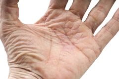Psoriasis, skin disease. On the joints of the body Stock Photography