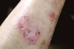 Psoriasis. On skin of man`s leg Stock Photography