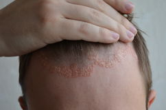 Psoriasis sur le plan rapproché, le cuir chevelu, les photos de la dermatite et l'eczema de peau, problèmes de peau, dermatologie photographie stock libre de droits