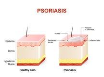 Psoriasis Stock Photos