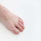 Psoriasis of the toenails with text space Stock Photo