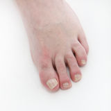 Psoriasis under the toenails - close-up Stock Photography