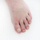 Psoriasis under the toenails - close-up Stock Photography