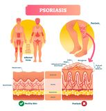 Psoriasis vector illustration. Skin disease and illness. Labeled structure. Psoriasis vector illustration. Autoimmune skin disease and illness. Labeled vector illustration
