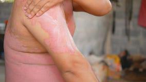 Psoriasispatienten benutzen Kr?utermedizin, um Wunden in den Armen zu behandeln stock footage