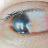 Pterygium Stock Images