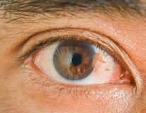 Pterygium d'oeil chez l'homme