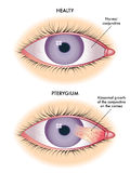 Pterygium Royalty Free Stock Photo