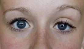 Ptosis/sinkendes Augenlid stockbild