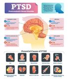 PTSD vector illustration. Labeled anatomical mental disorder causes scheme. Compared healthy and problematic brain differences set. Explained psychiatry vector illustration