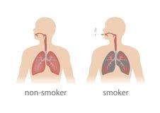 płuca ludzkich Fotografia Stock