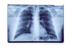 Płuca prześwietlenia promieniowania rentgenowskiego rezultat Zdjęcia Stock