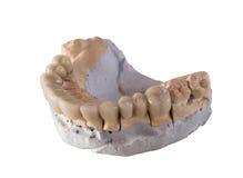 Puente de cerámica dental aislado en blanco Imagen de archivo libre de regalías