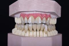 Puente del maxilar y de la mandíbula Imagen de archivo libre de regalías