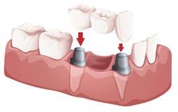 Puente dental Imágenes de archivo libres de regalías