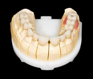 Puente dental de la circona fotos de archivo