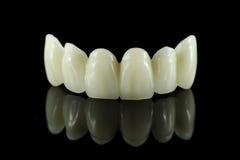 Puente dental del diente Fotografía de archivo