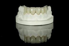 Puente dental del diente Foto de archivo libre de regalías