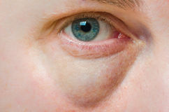 Puffy swollen eye. On a Caucasian person stock image