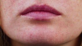 Pukkels op kin Probleemhuid Acne op het gezicht Onderzoek door een arts stock videobeelden
