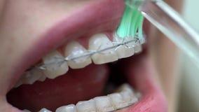 Pulizia dei sostegni pazienti dei denti in clinica dentaria stock footage