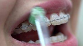 Pulizia dei sostegni pazienti dei denti in clinica dentaria video d archivio