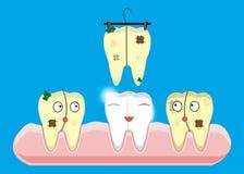 Pulizia della dentatura e concetti di imbiancatura Contatore, laser, meccanico, pittura Vettore del fumetto dentario royalty illustrazione gratis