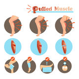 Pulled Muscle. Muscle Strain degree and  Treatment isolated on white background.Vector illustrations Stock Photography