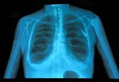 Pulmão do raio X Imagem de Stock Royalty Free