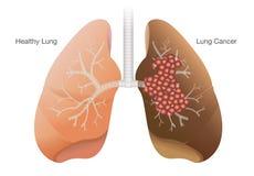 Pulmão saudável e pulmão do câncer ilustração stock