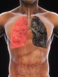 Pulmão saudável e pulmão dos fumadores Imagens de Stock