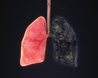 Pulmão saudável e pulmão dos fumadores Fotografia de Stock Royalty Free