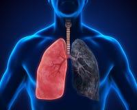 Pulmão saudável e pulmão dos fumadores Foto de Stock Royalty Free