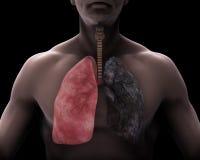 Pulmão saudável e pulmão dos fumadores Imagens de Stock Royalty Free